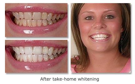 Dentist San Francisco Dental Spa Before And After Photos
